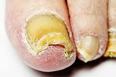 Watch This Video Mind Blowing Home Remedies for Toenail Fungus that Really Work Ideas. Astonishing Home Remedies for Toenail Fungus that Really Work Ideas. Best Toenail Fungus Treatment, Toenail Fungus Remedies, Face Treatment, Top 10 Home Remedies, Natural Home Remedies, Nail Disorders, Toe Fungus, Nail Polish, Health And Fitness