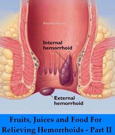 Fruits, Juices and Food For Relieving #Hemorrhoids