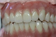 My mother just had dentures put in her mouth last weekend. I was really impressed with how long her teeth lasted. The dentures will be extremely helpful to her chewing ability.  http://www.thedentaloffice.ca/dental_services.html
