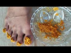 Home Remedies, Natural Remedies, Manicure, Nails, Health Snacks, Dental Health, Fungi, Diy And Crafts, Projects To Try