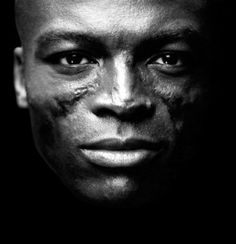 Seal, one of the few famous men who battle lupus