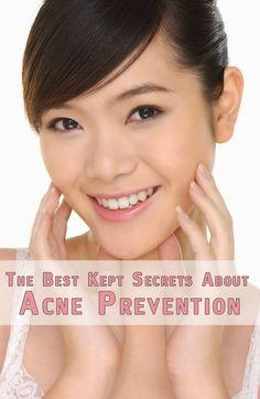 The Best Kept Secrets About #Acne Prevention