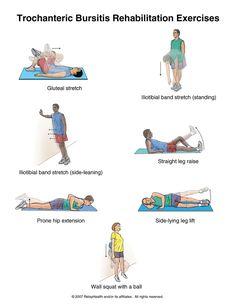 Image detail for -Summit Medical Group - Trochanteric Bursitis Rehabilitation Exercises