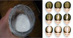 Thicker Hair Remedies Baking soda is great for your hair. Use some baking soda instead of your regular shampoo, and your hair will be more than grateful. It will improve the quality Diy Shampoo, Baking Soda Shampoo, Homemade Shampoo, Make Hair Grow Faster, How To Make Hair, Grow Hair, Sodium Bicarbonate, Hair Quality, Hair Remedies