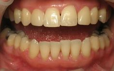 LANAP Invisalign Veneers : Here is a case that had 12 mm pockets then after LANAP went down to 3mm.  She had an anterior cross bite and large gaps between her teeth.  Therefore Invisalign was done and then veneers were completed to close the spaces.  Consider that many dentists would have removed all her teeth since all of them had 7mm pockets and above.More pictures of the case  https://plus.google.com/p hotos/ JohnMcAllister/alb ums/5522015621848022465?b anner=pwa…