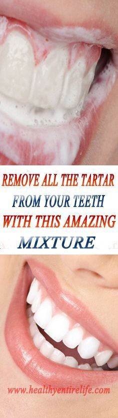 DIY toothpaste and rinse recipe