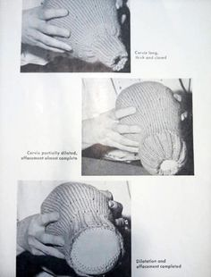 """photograph of a knitted uterus being demonstrated, from pamphlet """"How to Make a Knitted Uterus for Teaching,"""" Wellcome Library."""