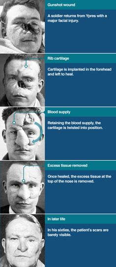 How do you fix a face that's been blown off by shrapnel? Surgical reconstruction of William Spreckley by Harold Gillies Extreme Plastic Surgery, Creepy History, Human Oddities, Blow Off, Vintage Medical, Strange Photos, Medical History, World War One, Knives
