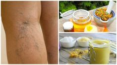 Natural Remedies Varicose Veins How to prepare an arnica ointment to attenuate varicose veins and spider veins Varicose Veins Causes, Varicose Vein Remedy, How To Handle Stress, Natural Home Remedies, Natural Treatments, Healthy Tips, Healthy Habits, The Cure, Pregnancy