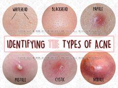 Types Of Acne, Whitehead, Blackhead, Papule, Pustule, Cyst, Nodule