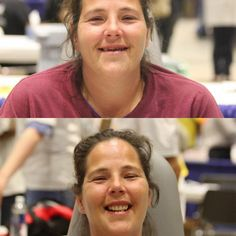 A woman's life changes after she receives a free new set of dentures at CDA Cares Modesto. The next free dental clinic is in Sacramento on August 24-25. www.cdafoundation.org/cdacares