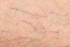 Sommige mensen wenden bij spataderen tot chirurgen, maar er zijn ook natuurlijke middelen tegen spataderen, waarover we het in dit artikel zullen hebben.