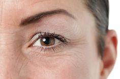 5 Hausmittel gegen Augenfalten & Krähenfüße