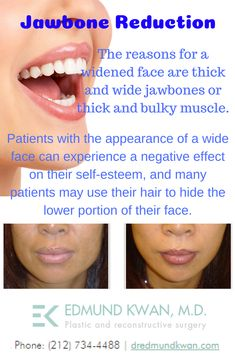 Unfortunately, not everyone has a natural appearance which matches their inner spirit and vigor. The jawbone is often a problem area of the face that . Teeth Whitening Remedies, Whitening Kit, Jaw Reduction Surgery, Dental Reconstruction, Physical Change, Self Conscious, Dental Care, Plastic Surgery, Dentistry