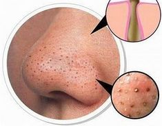Watch This Video Effective Natural Remedies To Remove Blackheads Ideas. Irresistible Natural Remedies To Remove Blackheads Ideas. Blackhead Remedies, Blackhead Remover, Blackhead Scrub, Acne Remedies, Nairobi Hair Products, Beauty Care, Beauty Hacks, Beauty Guide, Diy Face Scrub