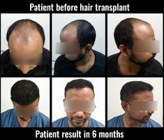 Advanced FUE hair transplant in pune with affordable hair transplant cost at la densitae hair transplant center in pune Hair Transplant Cost, Hair Transplant Surgery, Hair Clinic, Hair Restoration, Hair Loss Treatment, Once In A Lifetime, Pune, Fall Hair
