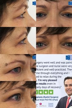 Upper Blepharoplasty (Eyelid Surgery) by Dr Verjee at our London clinic. For bookings please call 020 7486 6778 or visit our website for more information Facial Cosmetic Surgery, Medical Council, Eyelid Surgery, Clinic, Eyebrows, How To Remove, London, Photos, Website