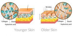 Younger Vs. Older Skin Diagram
