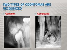 """Complex Odontoma slide haphazardly arranged dental hard and soft tissue, it has no resemblance to a normal tooth - Compound Odontoma: collection of small radio-opaque masses, some or all may be tooth-like structures """"denticles"""". Oral Pathology, Head And Neck, Dental, Tooth, Image, Collection, Teeth, Dentist Clinic"""