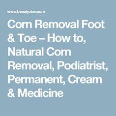 Corn Removal Foot & Toe – How to, Natural Corn Removal, Podiatrist, Permanent, Cream & Medicine