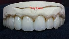 Layered Emax! Dental Technician, Teeth Shape, My Passion, Dentistry, Ceramics, Tooth, Bridge, Porcelain, Pasta