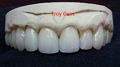 Layered Emax! Dental Technician, Teeth Shape, My Passion, Dentistry, Layers, Ceramics, Tooth, Bridge, Porcelain