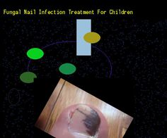 Fungal nail infection treatment for children - Nail Fungus Remedy. You have nothing to lose! Visit Site Now