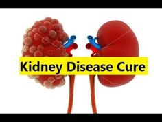 Kidney Disease Cure - How to Treat Kidney Disease #KidneyDisease