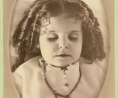 Image detail for -. see the dark circles underneath this poor young girl's dead eyes Post Mortem Memento Mori, Vintage Photographs, Vintage Photos, Unique Vintage, Dracula, Creepy Old Photos, Post Mortem Pictures, Post Mortem Photography, Favim