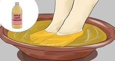 Remedies For Toenail Fungus Soak Your Feet in This Apple Cider Vinegar Mixture for 15 Min to Get Rid of Fungus and Warts Apple Cider Vinegar Warts, Apple Cider Vinegar Remedies, Foot Soak Vinegar, Spa Treatments, Salud Natural, Acv, Natural Solutions, Fungi, Poet