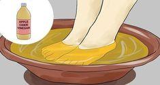 Remedies For Toenail Fungus Soak Your Feet in This Apple Cider Vinegar Mixture for 15 Min to Get Rid of Fungus and Warts Apple Cider Vinegar Warts, Apple Cider Vinegar Remedies, Foot Soak Vinegar, Infection Fongique, Diy Foot Soak, Soak Feet, Salud Natural, Acv, Natural Solutions