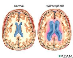Hydrocephalus: The brain condition that Arnold was born with.