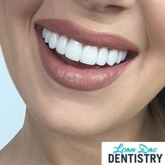 Loan Dao Dentistry is a modern dental clinic that provides an ideal Porcelain Veneers solution for everyone who desires for stunning smile. Veneers can be used to change the shape, size, color and symmetry of the teeth and smile. Call us at (480) 812-1173 for appointment!