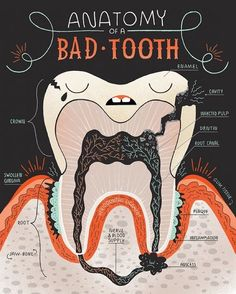 Last week we showed you the anatomy of a tooth here's the anatomy of a BAD tooth. If you feel like you identify with any of these give us a call asap! Our office number is (203)254-0545. #CTDentist #FairfieldSmiles #CTProsthodontist #Prosthodontist