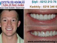 implant diş ve zirkonyum diş fiyatları ve genel bilgiler hakkında tüm detayları http://www.estetikdishekimligi.org/ sitemizden rahatlıkla öğrenebilirsiniz.