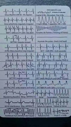 EKG Heart Rhythms Cheat Sheet The ultimate guide to EKG (ECG) interpretation for nurses. Most Nurses Have to Interpret EKG Rhythms Every Day. Our FREE Cheat Sheet Will Make Recognizing the Difference Second Nature. Nclex, Nursing Articles, Nursing Tips, Nursing Cheat Sheet, Nursing Programs, Rn Programs, Certificate Programs, Cardiac Nursing, Nursing Mnemonics