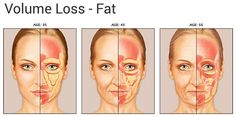 fat-loss-facial