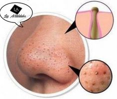 Blackheads are small bumps that appear in your skin due to clogged hair follicles.These bumps are called blackheads because the surface looks dark or black.Blackheads are a mild type of acne that usually form on the face. How To Get Rid, How To Remove, Whitehead Removal, Facial Steaming, Get Rid Of Blackheads, Homemade Face Masks, Blackhead Remover, Hair Oil, Le Point