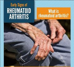 Rheumatoid arthritis is an autoimmune disorder that causes chronic inflammation of joints. Rheumatoid arthritis (RA) tends to begin slowly with minor symptoms that come and go usually on both sides of the body and progress over a period of weeks or months. Symptoms of this chronic disease vary from person to person and can change from day to day. Bouts of disease activity are called flare-ups and inactive periods are called remission. Visit us jointpainrepair.com Via google images #jointpain…