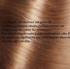 Une partie des #cheveux est prise de la zone donneuse pour être inséré après dans les zones atteintes de calvitie.