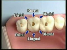 This video is an excerpt from Dental Anatomy: All About Teeth. Computer graphic animations and extensive clinical video footage teach the types of teet. Dental Assistant Study, Dental Hygiene Student, Dental Humor, Dental Hygienist, Dental Procedures, Medical Students, Nursing Students, Dental Life, Dental Teeth