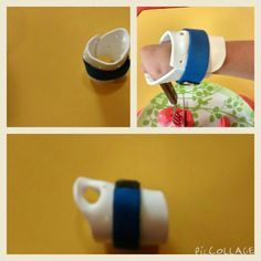 Con zoquet podemos facilitar el uso del tenedor en una persona con amputación congénita y así facilitar su participación  independiente en la alimentación.