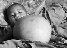 Little Kang Mengru, from China, left medics baffled after her belly became enlarged. Doctors carried out a CT scan to discover the cause of the growth and found a foetus inside her. They believe the tot is her parasitic twin. She is now waiting for an operation to have the tiny baby removed.