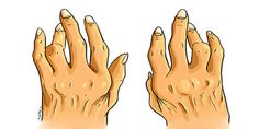 Combata artrite, esporão e ácido úrico com o remédio mais poderoso e econômico do mercado
