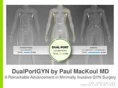DualPortGYN by Paul MacKoul MD, A Remarkable Advancement in Minimally Invasive GYN Surgery
