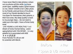 Anti Aging Supplements, My Youth, Genetics, First World