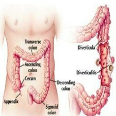 Home Remedies For Constipation In Adults