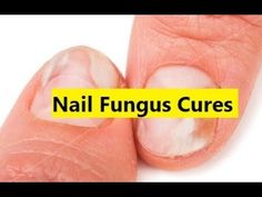 Nail Fungus Cures - Home Remedy for Toenail Fungus #NailFungusCures