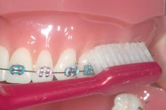 Tips on Cleaning Teeth With Braces