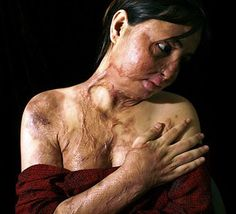 Violence against Women. This Afghanstan woman was maimed by her fiance when she refused to marry him.
